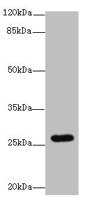 TMEM217 Antibody - Western blot All lanes: TMEM217 antibody at 10µg/ml + Jurkat whole cell lysate Secondary Goat polyclonal to rabbit IgG at 1/10000 dilution Predicted band size: 27, 25 kDa Observed band size: 27 kDa