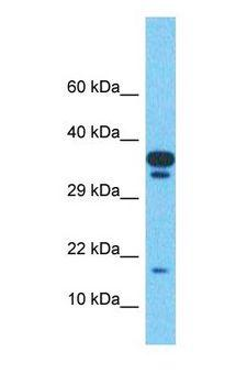 TMEM220 Antibody - Western blot of TMEM220 Antibody with human Uterus Tumor lysate.  This image was taken for the unconjugated form of this product. Other forms have not been tested.
