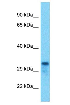 TMEM221 Antibody - TMEM221 antibody Western Blot of HCT15. Antibody dilution: 1 ug/ml.  This image was taken for the unconjugated form of this product. Other forms have not been tested.