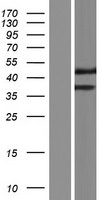 TMEM236 Protein - Western validation with an anti-DDK antibody * L: Control HEK293 lysate R: Over-expression lysate