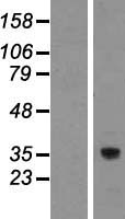 TMEM248 / c7orf42 Protein - Western validation with an anti-DDK antibody * L: Control HEK293 lysate R: Over-expression lysate