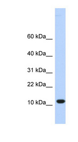 C10orf57 antibody LS-C102349 Western blot of HeLa lysate.  This image was taken for the unconjugated form of this product. Other forms have not been tested.
