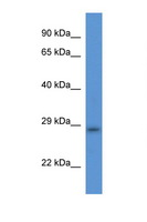 TMEM33 Antibody - TMEM33 antibody Western blot of Rat Heart lysate. Antibody concentration 1 ug/ml. This image was taken for the unconjugated form of this product. Other forms have not been tested.