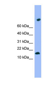 TMEM42 Antibody - TMEM42 antibody Western blot of ACHN lysate. This image was taken for the unconjugated form of this product. Other forms have not been tested.