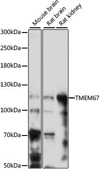 TMEM67 Antibody - Western blot analysis of extracts of various cell lines, using TMEM67 antibody at 1:1000 dilution. The secondary antibody used was an HRP Goat Anti-Rabbit IgG (H+L) at 1:10000 dilution. Lysates were loaded 25ug per lane and 3% nonfat dry milk in TBST was used for blocking. An ECL Kit was used for detection and the exposure time was 3min.