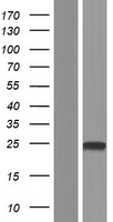 TMEM91 Protein - Western validation with an anti-DDK antibody * L: Control HEK293 lysate R: Over-expression lysate