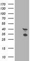 HEK293T cells were transfected with the pCMV6-ENTRY control (Left lane) or pCMV6-ENTRY TMOD1 (Right lane) cDNA for 48 hrs and lysed. Equivalent amounts of cell lysates (5 ug per lane) were separated by SDS-PAGE and immunoblotted with anti-TMOD1.