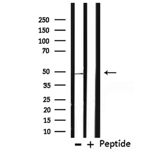 TMPRSS3 Antibody - Western blot analysis of extracts of mouse brain tissue using TMPRSS3 antibody.