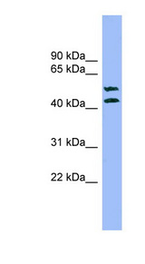 TMPRSS3 Antibody - TMPRSS3 antibody western blot of A549 cell lysate.  This image was taken for the unconjugated form of this product. Other forms have not been tested.