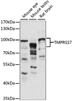 TMPRSS7 Antibody - Western blot analysis of extracts of various cell lines, using TMPRSS7 antibody at 1:1000 dilution. The secondary antibody used was an HRP Goat Anti-Rabbit IgG (H+L) at 1:10000 dilution. Lysates were loaded 25ug per lane and 3% nonfat dry milk in TBST was used for blocking. An ECL Kit was used for detection and the exposure time was 90S.