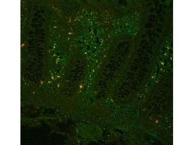 TNF Alpha Antibody - Fluorescent immunohistochemistry showing staining of human colon by Anti-TNF alpha (formalin/PFA-fixed paraffin-embedded sections). Samples were formaldehyde-fixed, then blocked in 10% serum for 2 hours at 20°C. The primary antibody was diluted 1:100 and incubated with the sample for 2 hours at 20°C. Alexa Fluor 680 goat polyclonal secondary antibody was used diluted 1:5000.