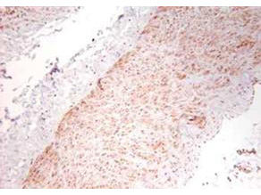TNF Alpha Antibody - Immunohistochemistry using the polyclonal TNFa antibody showing staining of formalin/PFA-fixed paraffin-embedded sections of human artery tissue sections. Sections were fixed in formaldehyde and subjected to heat mediated antigen retrieval in citrate buffer (pH 6.0). Slides were blocked for ten minutes with 1.5% serum. Primary antibody was diluted 1:100 and incubated with samples for 24 hours at 4°C. HRP-conjugated goat anti-rabbit antibody was used as the secondary antibody.
