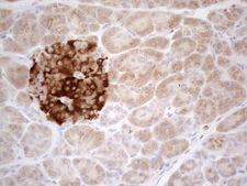 TNFRSF10B / Killer / DR5 Antibody - Immunohistochemical staining of paraffin-embedded Human pancreas tissue using anti-TNFRSF10B mouse monoclonal antibody. (Heat-induced epitope retrieval by 1mM EDTA in 10mM Tris buffer. (pH8.5) at 120°C for 3 min. (1:150)