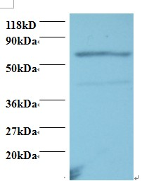 Western blot of Tumor necrosis factor receptor superfamily member 11A antibody at 2 ug/ml. Lane 1: EC109 whole cell lysate. Lane 2: 293T whole cell lysate. Secondary: Goat polyclonal to Rabbit IgG at 1:15000 dilution. Predicted band size: 67 kDa. Observed band size: 67 kDa Additional bands at: 43 kDa. We are unsure as to the identity of this extra band.  This image was taken for the unconjugated form of this product. Other forms have not been tested.