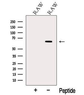 TNFRSF11A / RANK Antibody - Western blot analysis of extracts of RAW264.7 cells using TNR11 antibody. The lane on the left was treated with blocking peptide.