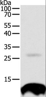 TNFRSF12A / TWEAK Receptor Antibody - Western blot analysis of 293T cell, using TNFRSF12A Polyclonal Antibody at dilution of 1:300.