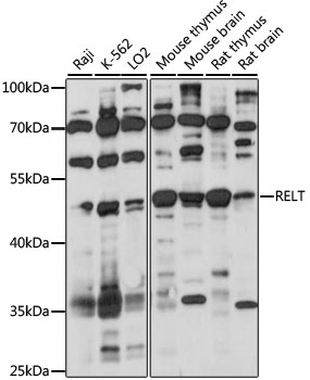 TNFRSF19L / RELT Antibody - Western blot analysis of extracts of various cell lines, using RELT antibody at 1:1000 dilution. The secondary antibody used was an HRP Goat Anti-Rabbit IgG (H+L) at 1:10000 dilution. Lysates were loaded 25ug per lane and 3% nonfat dry milk in TBST was used for blocking. An ECL Kit was used for detection and the exposure time was 60S.