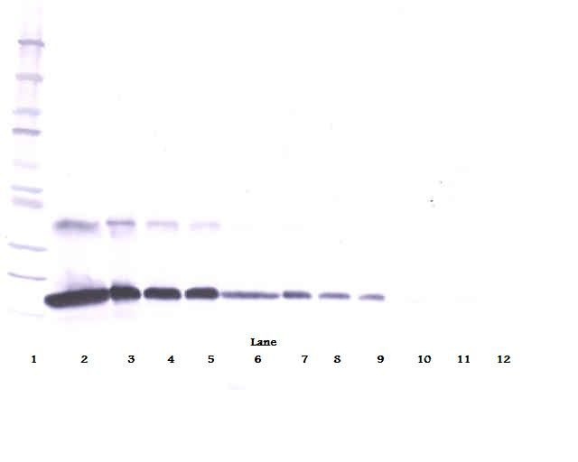 Western Blot (reducing) of TNFRSF1A / TNFR1 antibody LS-C104400
