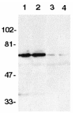 TNFRSF21 / DR6 Antibody - Western blot of DR6 in K562 (1,3) and Raji (2,4) whole cell lysate in the absence (1,2) or presence (3,4) of blocking peptide (Catalog no. 2157P) with DR6 antibody at 1:500 dilution.