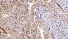 TNFRSF21 / DR6 Antibody - 1:100 staining human thyroid carcinoma tissue by IHC-P. The sample was formaldehyde fixed and a heat mediated antigen retrieval step in citrate buffer was performed. The sample was then blocked and incubated with the antibody for 1.5 hours at 22°C. An HRP conjugated goat anti-rabbit antibody was used as the secondary.