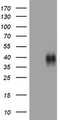HEK293T cells were transfected with the pCMV6-ENTRY control (Left lane) or pCMV6-ENTRY TNFRSF9 (Right lane) cDNA for 48 hrs and lysed. Equivalent amounts of cell lysates (5 ug per lane) were separated by SDS-PAGE and immunoblotted with anti-TNFRSF9.