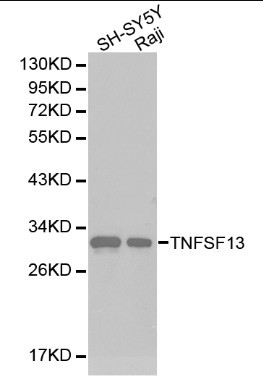 Western blot of TNFSF13 pAb in extracts from SH-SY5Y and Raji cells.