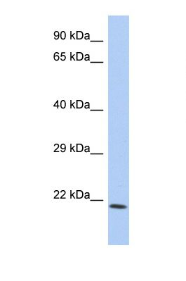 Western blot of Human COLO205. TNFSF15 antibody dilution 1.0 ug/ml.  This image was taken for the unconjugated form of this product. Other forms have not been tested.