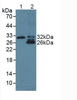 Western Blot; Sample: Lane1: Human Liver Tissue; Lane2: Human Lung Tissue.