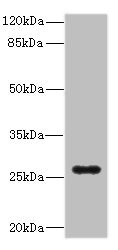 Western blot All Lanes: TNFSF15 antibody IgG at 0.87ug/ml+ Mouse lung tissue Secondary Goat polyclonal to rabbit IgG at 1/10000 dilution Predicted band size: 29,22,21 kDa Observed band size: 28 kDa