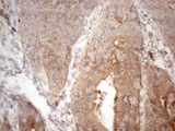 Immunohistochemical staining of paraffin-embedded Adenocarcinoma of Human colon tissue using anti-PSMG2 mouse monoclonal antibody. (Heat-induced epitope retrieval by 1mM EDTA in 10mM Tris buffer. (pH8.5) at 120°C for 3 min. (1:150)