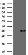 TNFSF5IP1 / CLAST3 Antibody - HEK293T cells were transfected with the pCMV6-ENTRY control. (Left lane) or pCMV6-ENTRY PSMG2. (Right lane) cDNA for 48 hrs and lysed. Equivalent amounts of cell lysates. (5 ug per lane) were separated by SDS-PAGE and immunoblotted with anti-PSMG2. (1:500)