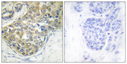 Immunohistochemistry analysis of paraffin-embedded human breast carcinoma, using ACK1 (Phospho-Tyr284) Antibody. The picture on the right is blocked with the phospho peptide.