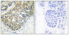 TNK2 / ACK1 Antibody - Immunohistochemistry analysis of paraffin-embedded human breast carcinoma, using ACK1 (Phospho-Tyr284) Antibody. The picture on the right is blocked with the phospho peptide.