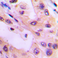 Immunohistochemical analysis of ACK1 (pY284) staining in human lung cancer formalin fixed paraffin embedded tissue section. The section was pre-treated using heat mediated antigen retrieval with sodium citrate buffer (pH 6.0). The section was then incubated with the antibody at room temperature and detected using an HRP-conjugated compact polymer system. DAB was used as the chromogen. The section was then counterstained with hematoxylin and mounted with DPX.