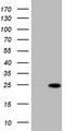 HEK293T cells were transfected with the pCMV6-ENTRY control (Left lane) or pCMV6-ENTRY TNNI2 (Right lane) cDNA for 48 hrs and lysed. Equivalent amounts of cell lysates (5 ug per lane) were separated by SDS-PAGE and immunoblotted with anti-TNNI2.