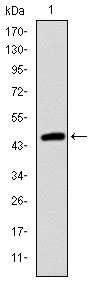 Western blot using TNNI2 monoclonal antibody against human TNNI2 (AA: 1-182) recombinant protein. (Expected MW is 46.8 kDa)