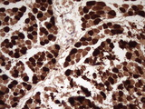 IHC of paraffin-embedded Human muscle tissue using anti-TNNI2 mouse monoclonal antibody. (Heat-induced epitope retrieval by 1 mM EDTA in 10mM Tris, pH8.5, 120°C for 3min).