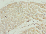 Immunohistochemistry of paraffin-embedded human heart tissue at dilution 1:100