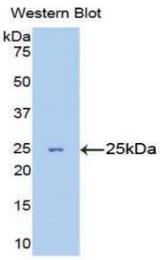 Western blot of recombinant TNNI3 / CTnI.  This image was taken for the unconjugated form of this product. Other forms have not been tested.