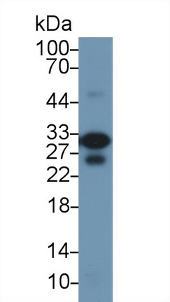 Western Blot; Sample: Mouse Heart lysate; Primary Ab: 1µg/ml Rabbit Anti-Rat TNNI3 Antibody Second Ab: 0.2µg/mL HRP-Linked Caprine Anti-Rabbit IgG Polyclonal Antibody