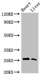 Western Blot Positive WB detected in:Rat heart tissue,Rat liver tissue All Lanes:Tnni3 antibody at 2.5µg/ml Secondary Goat polyclonal to rabbit IgG at 1/50000 dilution Predicted band size: 25 KDa Observed band size: 25 KDa