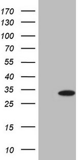 HEK293T cells were transfected with the pCMV6-ENTRY control (Left lane) or pCMV6-ENTRY TNNI3 (Right lane) cDNA for 48 hrs and lysed. Equivalent amounts of cell lysates (5 ug per lane) were separated by SDS-PAGE and immunoblotted with anti-TNNI3.