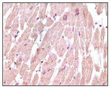 IHC using cTnI Antibody (3A10A12,5C3A7)