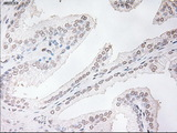 IHC of paraffin-embedded prostate tissue using anti-TNNI3 mouse monoclonal antibody. (Dilution 1:50).