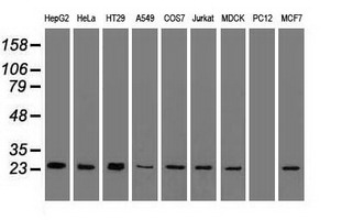 Western blot of 35 ug of cell extracts from human Liver carcinoma (HepG2) cells using anti-TNNI3 antibody.