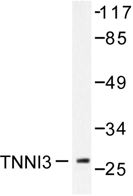 Western blot of TNNI3 (G136) pAb in extracts from mouse heart.