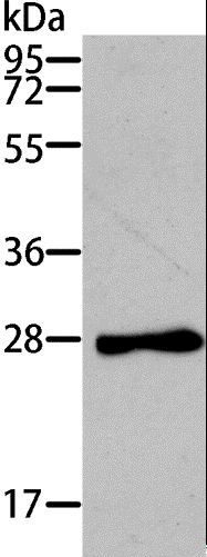 Western blot analysis of Mouse heart tissue, using TNNI3 Polyclonal Antibody at dilution of 1:200.