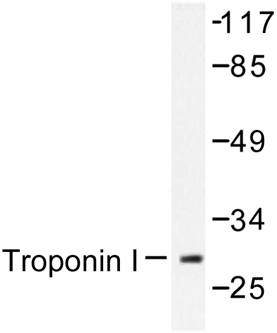 Western blot of TNNI3/Troponin I (K39) pAb in extracts from Jurkat cells.