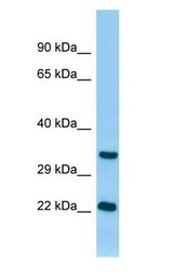 TNNI3 / CTnI antibody Western Blot of Rat Pancreas.  This image was taken for the unconjugated form of this product. Other forms have not been tested.