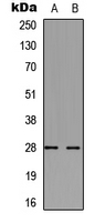 Western blot analysis of cTnI expression in mouse heart (A); rat heart (B) whole cell lysates.